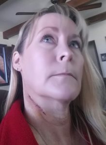 Basal cell carcinoma post-surgery picture