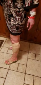 Image of surgical bandage compression wrap